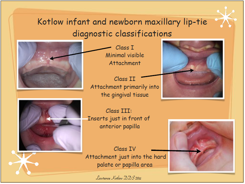 how to identify and deal with lip tie and tongue tie