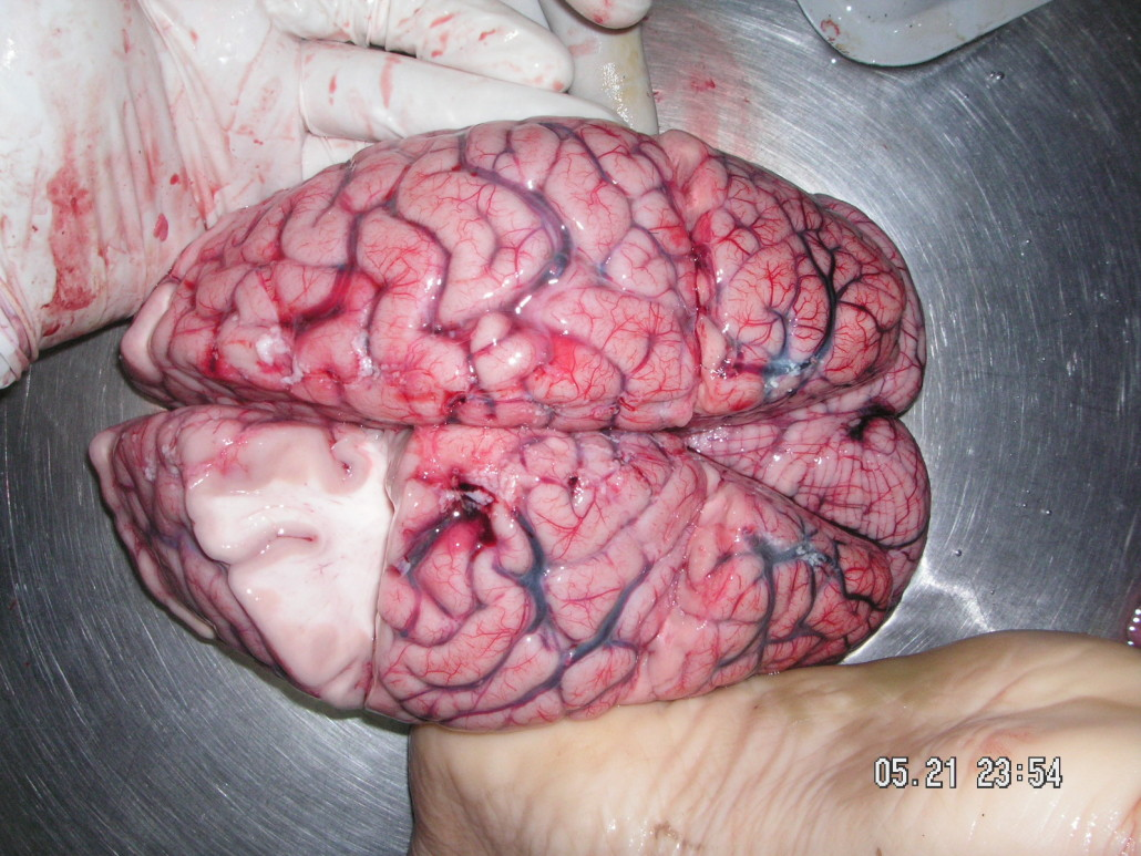 fresh brain sliced open to show gray matter and white matter