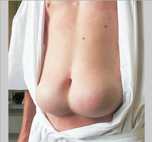 Location of Insulin Shots