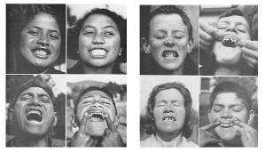 weston teeth