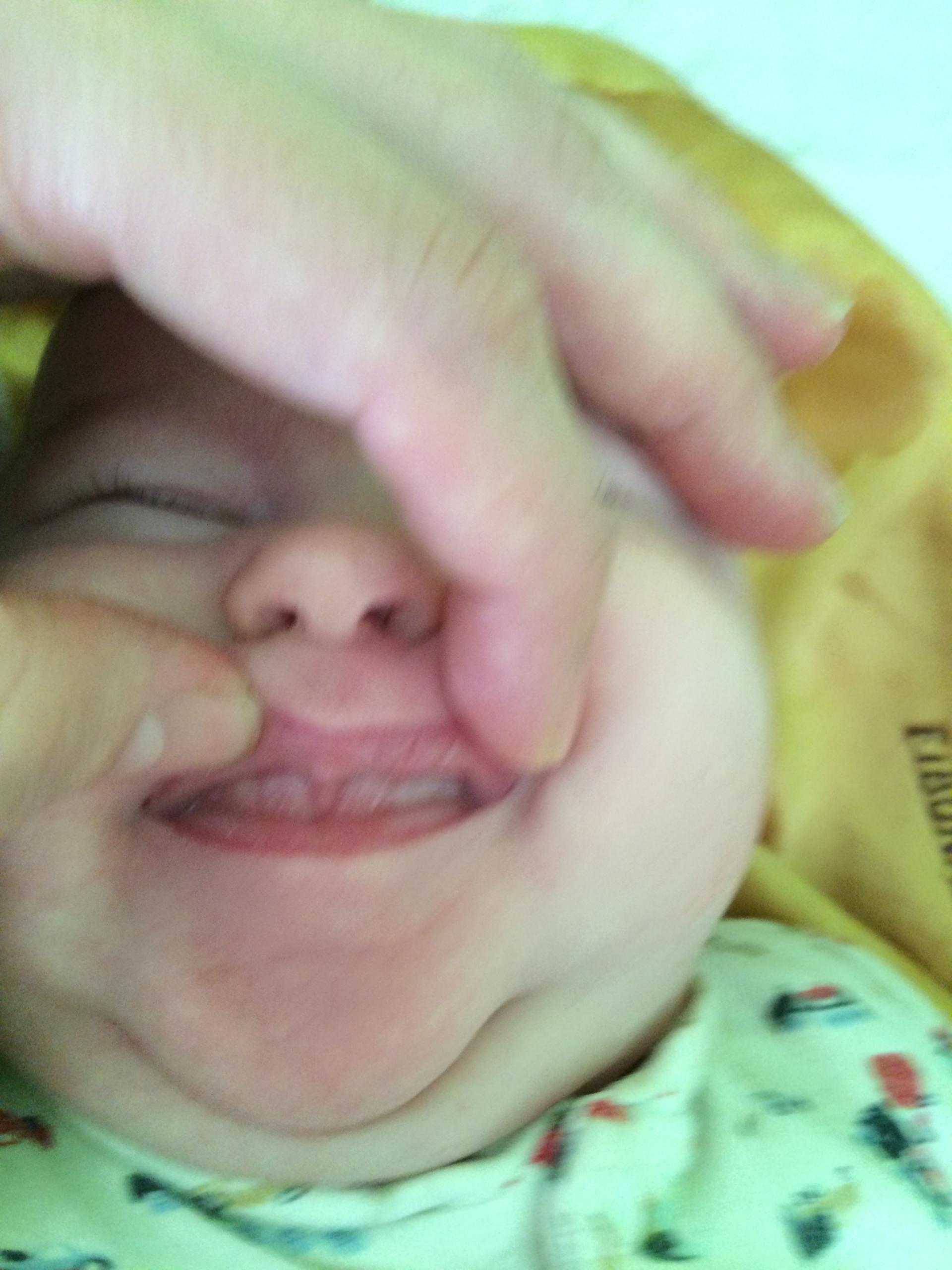 Baby Julian's Lip Tie