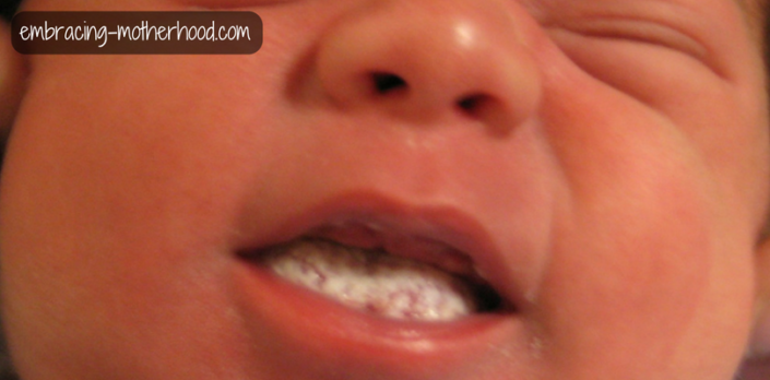 How to Identify and Treat Oral Thrush While Breastfeeding